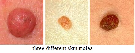 Papillomas and warts